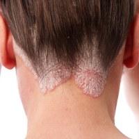 psoriasis pada kulit kepala